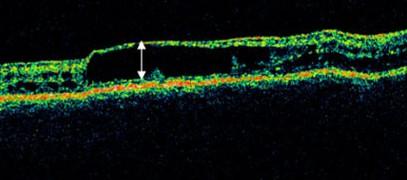 Imatge de Tomografia de Coherència Òptica on s'observa la separació de la capa interna de la retina en un pacient amb Retinoschisis lligada al X.