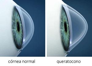 Morfologia de còrnia normal i morfologia típica del queratoconus.